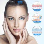 Los limpiadores faciales más vendidos en 2021 (Peeling Ultrasónico Facial)